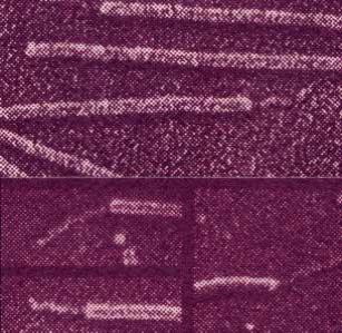 Enterotoxigenik Escherichia coli (ETEC)