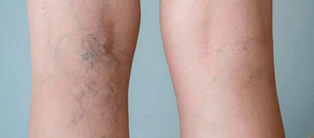 pierna con varices