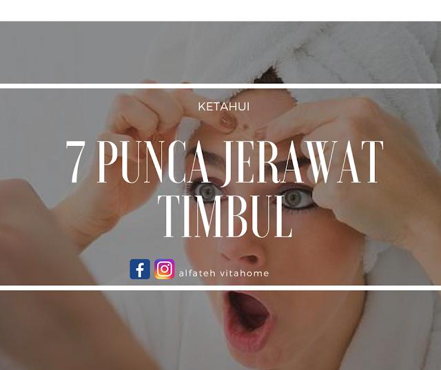 7 Punca Jerawat Timbul