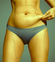 Best liposuction in Kolkata India by Dr Srinjoy Saha for slimming, sculpting and contouring of your body.