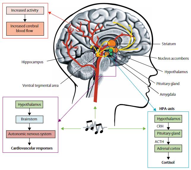 図:脳卒中患者への音楽療法の脳内機序
