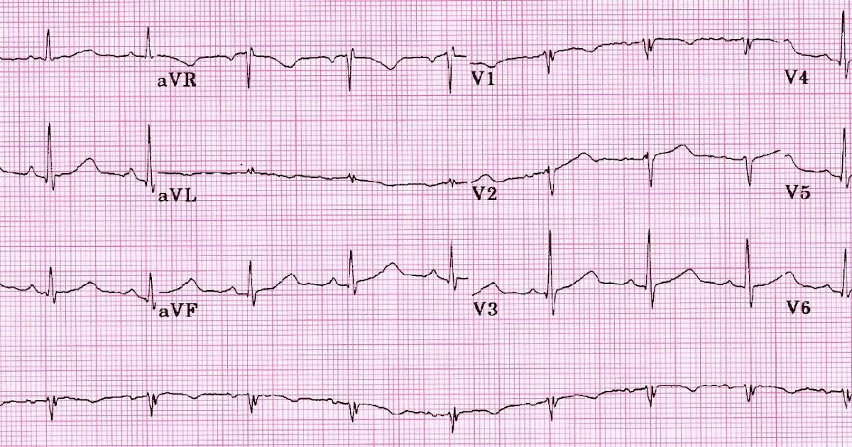 Study Medical Photos: QT Interval Prolongation On ECG