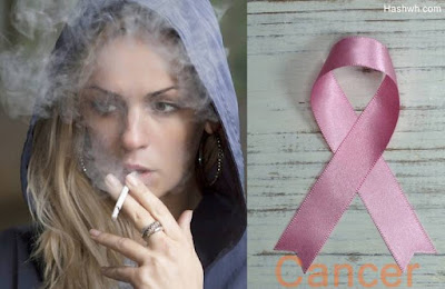 What is Cancer Causes Symptoms and Treatment.