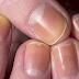10 veszélyes üzenet, amit a körmeid mutatnak