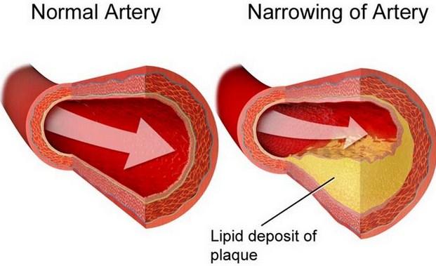 Cara Mudah Dan Cepat Menurunkan Kolesterol