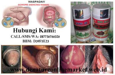 Jamu Obat Gonore/ Kencing Nanah Manjur