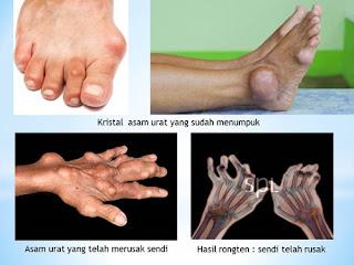 Buah Nektarin Untuk Penyakit Asam Urat