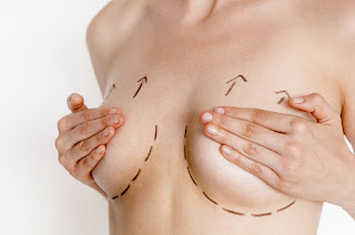 [Hình: breast-lift1.jpg]