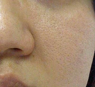 Facial Pore Size 37