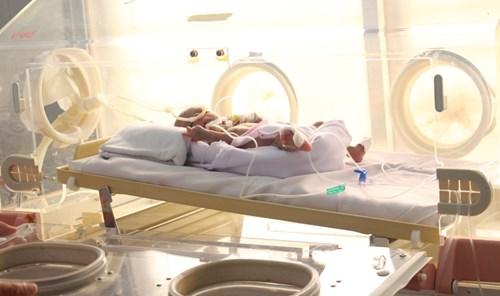 Gia Lai: Giành giật sự sống cho 2 bé sơ sinh chỉ nặng 700g