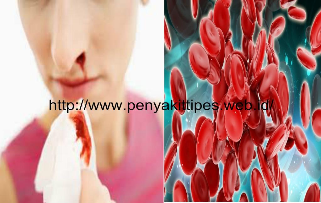 Pengobatan Tradisional Penyakit Kanker Darah