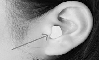 Cara membersihkan atau mengobati sakit pada telinga