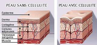 Éliminer la cellulite est en fait possible