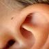 Fakta Bolongan Kecil di Dekat Telinga