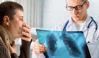 Tanda-tanda Gejala Kanker Paru-paru
