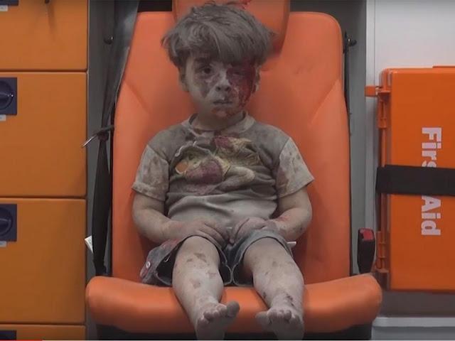 Doktor Di Syria Terkejut Orang Ramai Terkejut Lihat Video Viral Omran
