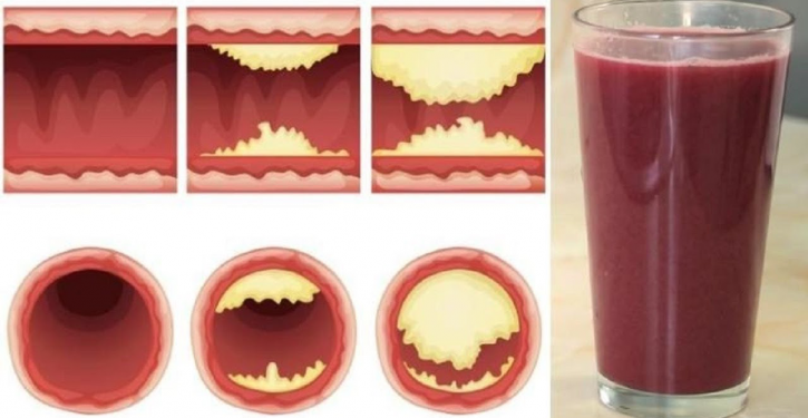 This Delicious Juice Opens Your Arteries And Prevents Heart Disease