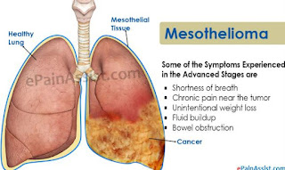 mesothelioma cancer life expectancy baret komandomesothelioma most commonly attacks the mesothelium of the lungs (called pleural mesothelioma) and the chest wall another type of mesothelioma less commonly