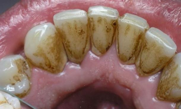 Izbeljivanje zuba jagodama