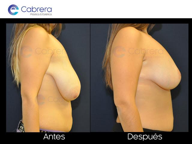 Foto caso antes y después 4. Reconstrucción de pecho Córdoba