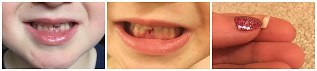 Wobbly Teeth