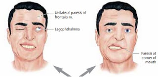 gejala penyakit stroke