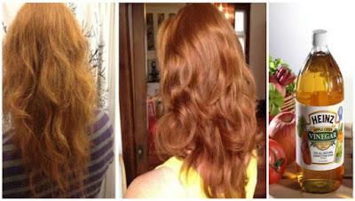 Remède au vinaigre de cidre pour la perte de cheveux