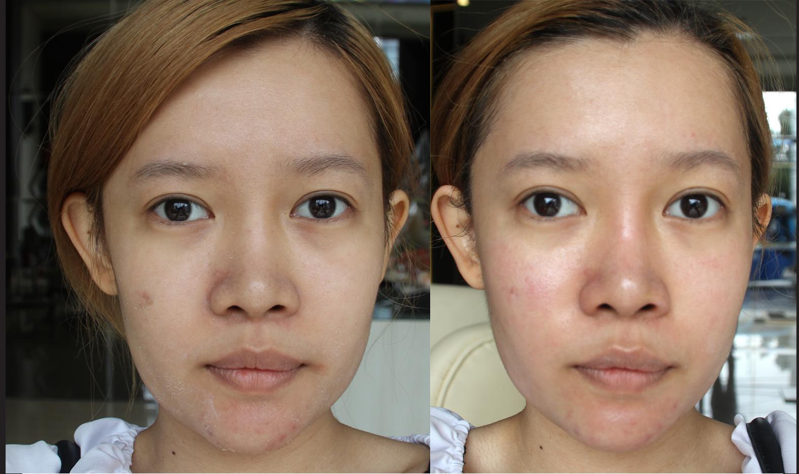 Stella lee indonesia beauty and travel blog dapat dilihat bahwa wajahku jadi terlihat super cerah warna kulit merata mulus dan juga pori pori lebih kecil o ccuart Images