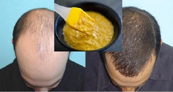 Les moyens pour le retrait de la coloration pour cheveux