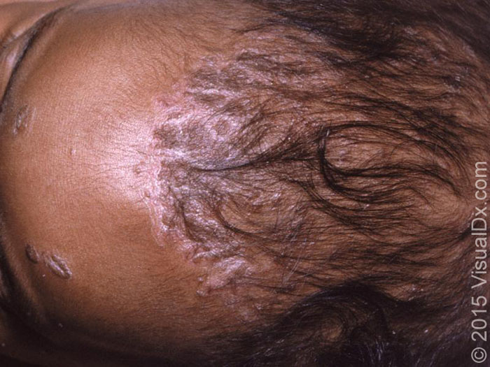 Ask Dis Infantile Seborrhoeic Dermatitis