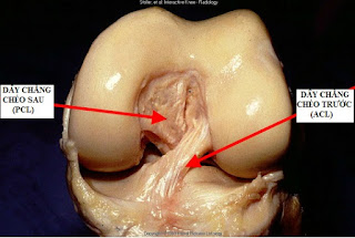 Tìm hiểu rõ về giải phẫu dây chằng chéo trước