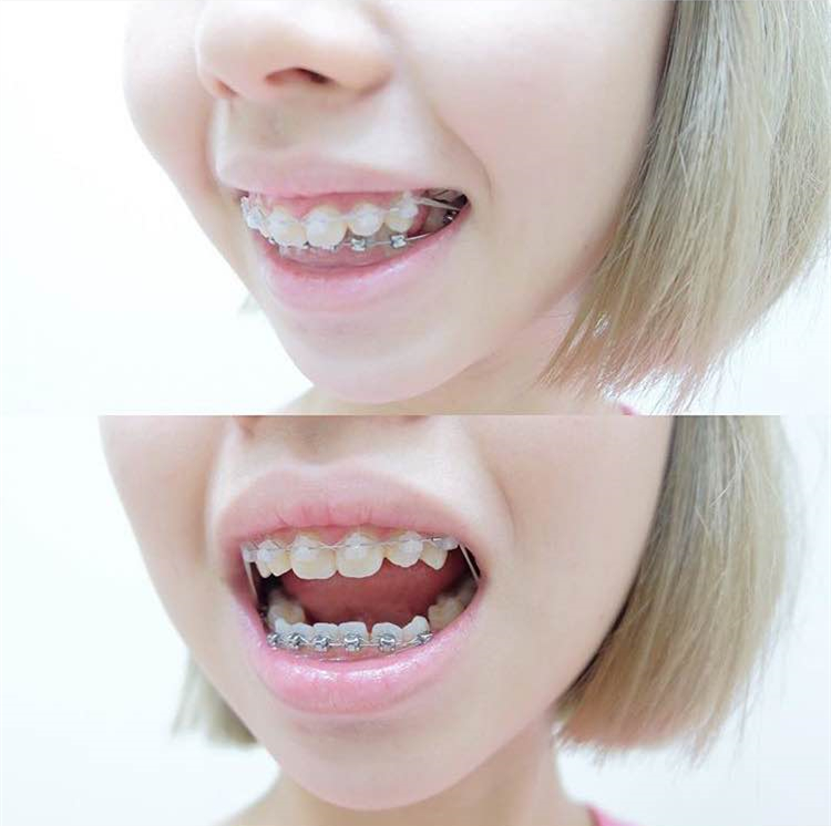 My Braces Story 3 Second And Final Stage Put On 4