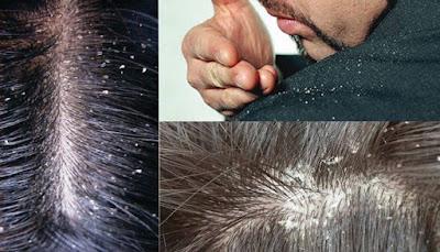 5 Cara Alami Ampuh Menghilangkan Ketombe Pada Rambut
