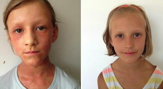 eczemele si alte probleme de piele pot fi vindecate prin alimentatie