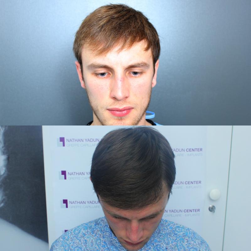 Greffe de cheveux pour jeune homme