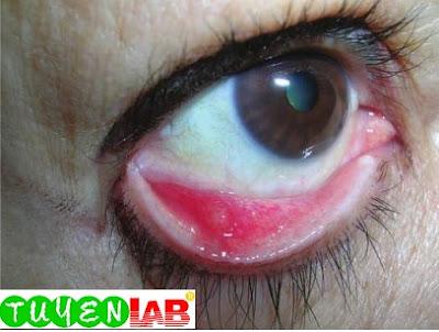 Chalazion viewed from internal eyelid showing the yellow lipogranulomatous material.