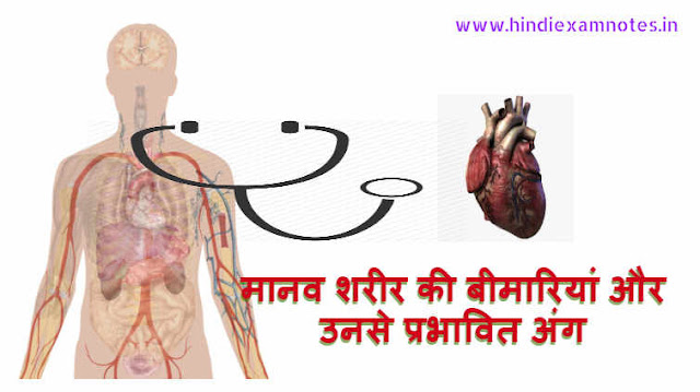 Human Body Diseases And Their Affected Organ