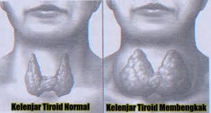 Obat Kelenjar Tiroid Tradisional