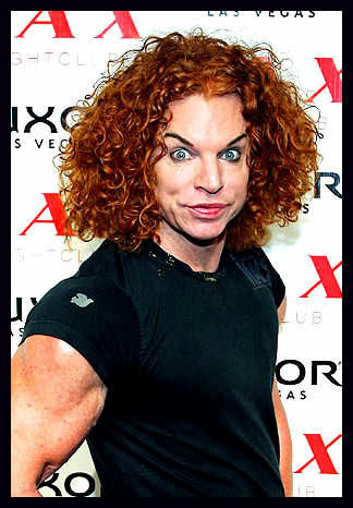 Carrot Top Plastic Surgery Botox Injections Browlift Before And After