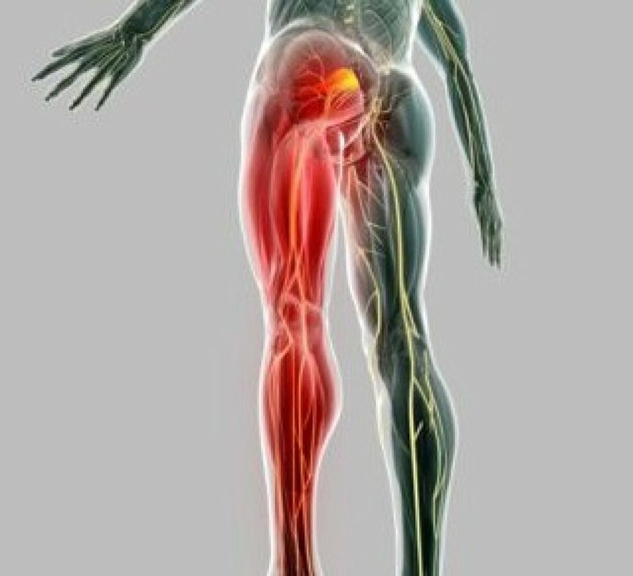 an overview of the sciatic nerve and its function You could be dealing with sciatic nerve pain, also called sciatica, which causes painful throbbing in the lower back and limbs the pain radiates down the body and can be a symptom of spinal stenosis.