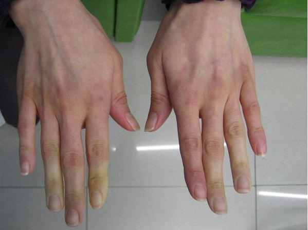 mainile si picioarele reci pot semnala existenta unor boli si afectiuni