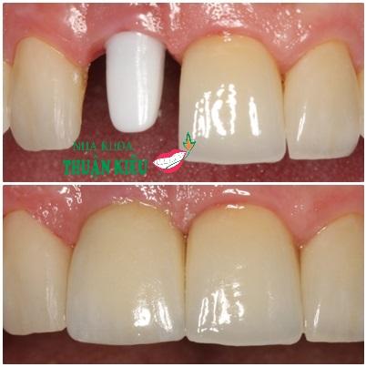 cay-ghep-rang-cay-ghep-implant-2016-nha-khoa-uy-tin-thuan-kieu-4