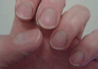conseguenze di mangiarsi le unghie, come smettere