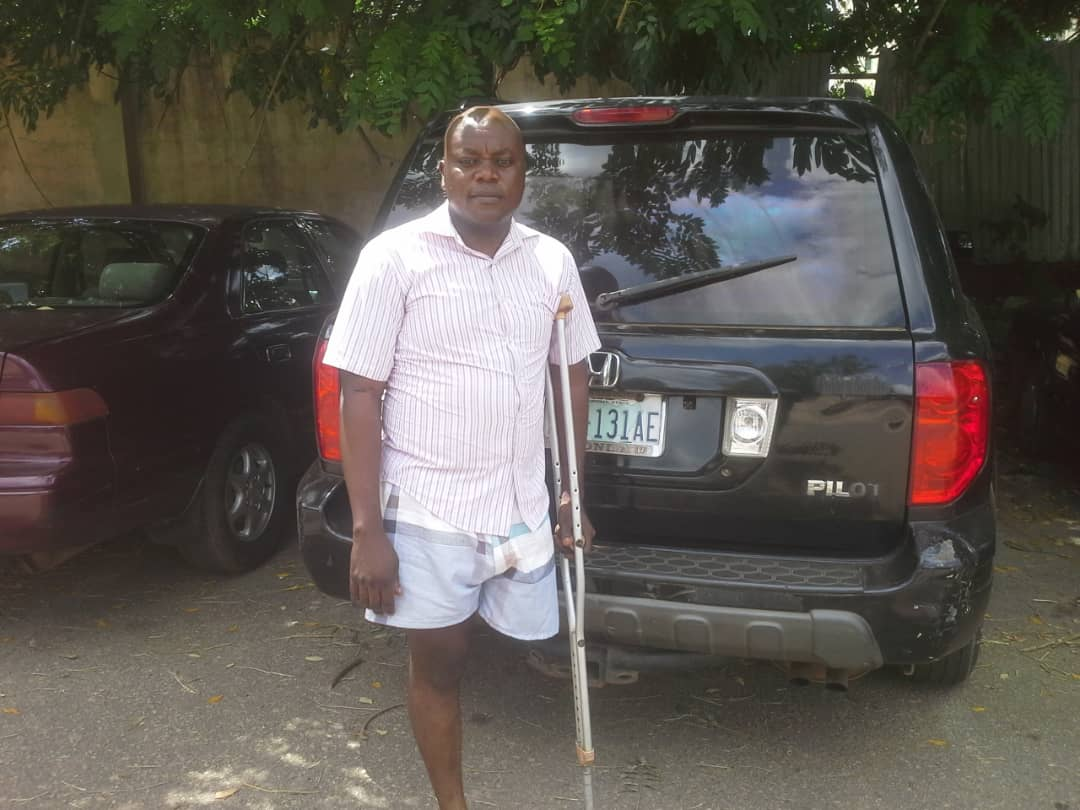 Medical student shot by kidnappers needs N20m for overseas medicare, begs Nigerians for help