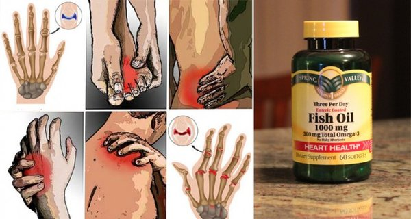 Relieve Arthritis Pain and Inflammation