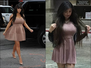 kim kardeshian, after surgery, whimsical people, kim's fan club, american tv celebrity