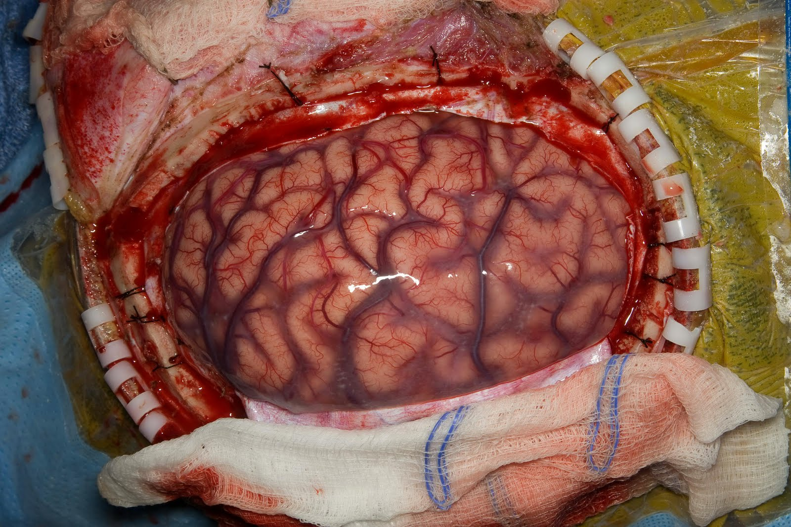 brain surgery - photo #7