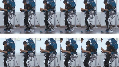 El tratamiento consiste en un sistema de interfaz cerebro-computadora.
