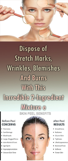 Dispose of Stretch Marks, Wrinkles, Blemishes And Burns With This Incredible 2-Ingredient Mixture #healthnaturalremedies