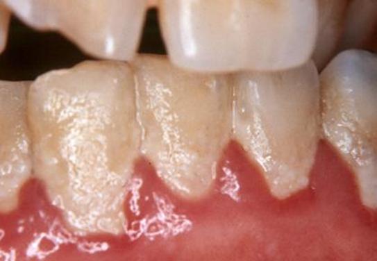 Зубной камень с внутренней стороны зуба
